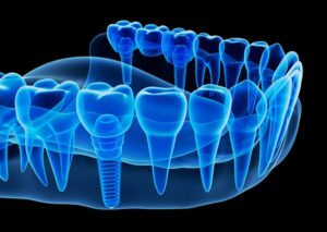Rendering of dental implants from Henderson Oral Surgery & Dental Implant Center on Green Valley Pkwy and St Rose Pkwy in Henderson, NV