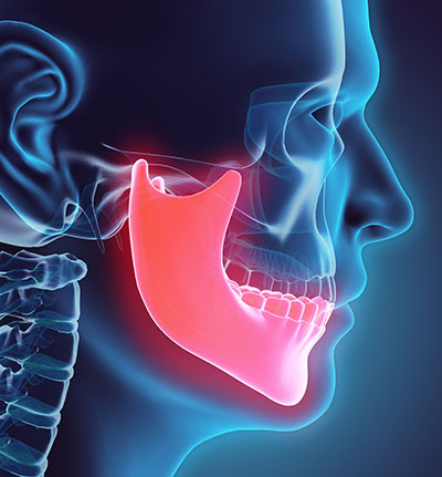 Rendering of a misaligned jaw from Henderson Oral Surgery & Dental Implant Center in Henderson, NV