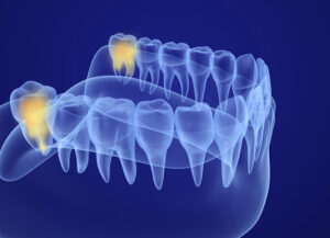 Rendering of impacted wisdom teeth from Henderson Oral Surgery & Dental Implant Center on Green Valley Pkwy and St Rose Pkwy in Henderson, NV