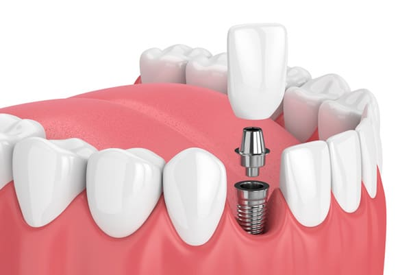 Rendering of a titanium dental implant from Henderson Oral Surgery & Dental Implant Center in Henderson, NV